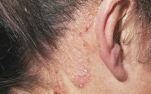 puva terápia pikkelysömör kezelésére mi ez vörös pikkelyes foltok az arcon és a nyakon