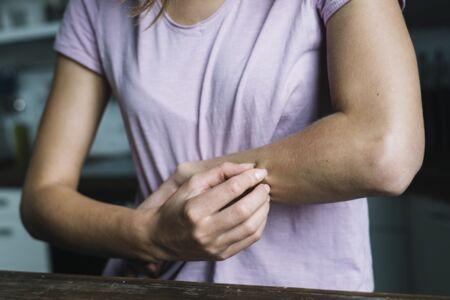 lorinden pikkelysömör kezelésével kapcsolatos vélemények pikkelysömör gyógyszer usa