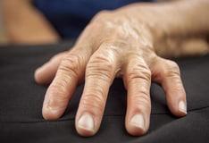 hogyan lehet eltvoltani a pikkelysömör kezein lev pelyhetst