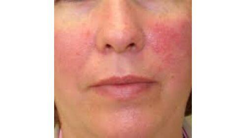 az arc pikkelysömörének kezelése otthon népi gyógymódokkal