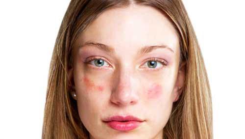 vaszkuláris vörös foltok az arcon)