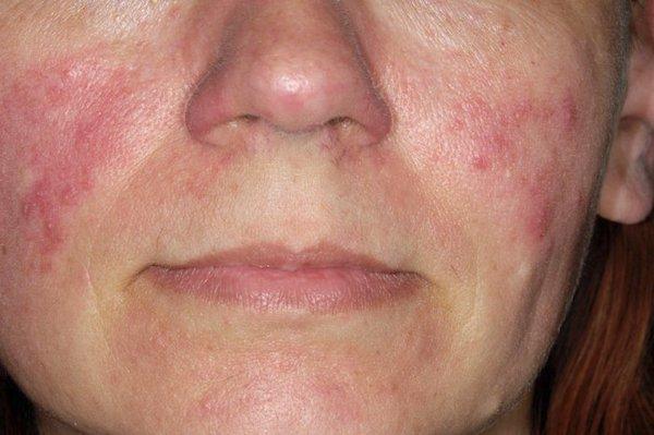 kiütések az arc bőrén vörös foltok formájában viszkető fotóval