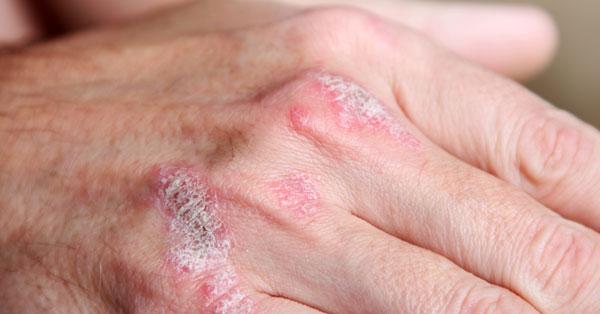 a kéz bőrén vörös foltok hámlanak vörös nyakak jelennek meg és tűnnek el viszketően