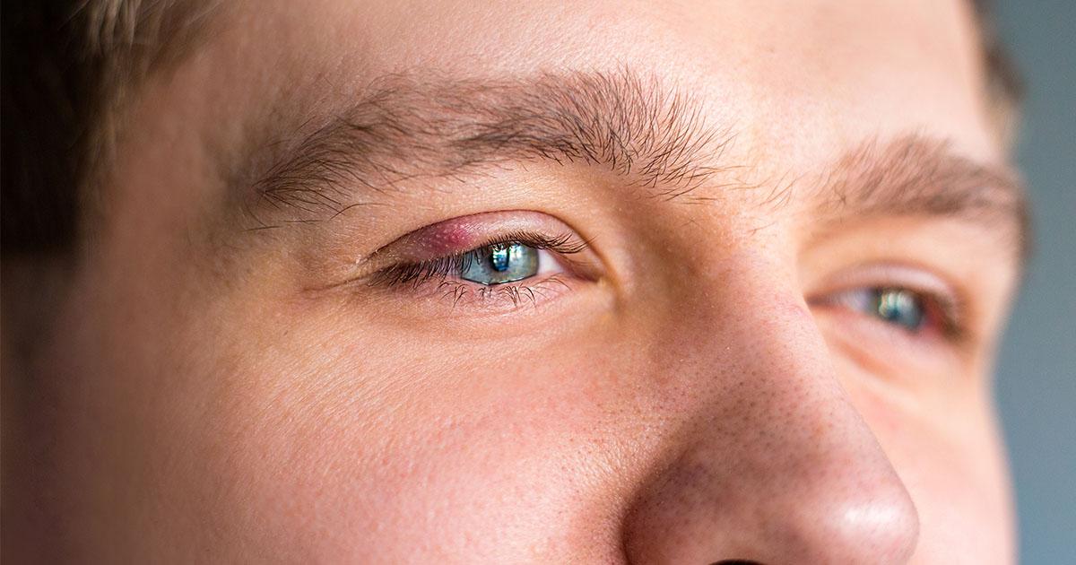 a szemhéjon pikkelysömör hogyan kell kezelni hogyan lehet eltávolítani a vörös foltokat az ajak herpesz után