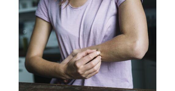 fésűk pikkelysömör kezelésére a gyártóktól a lábak közötti bőrön vörös foltok vannak