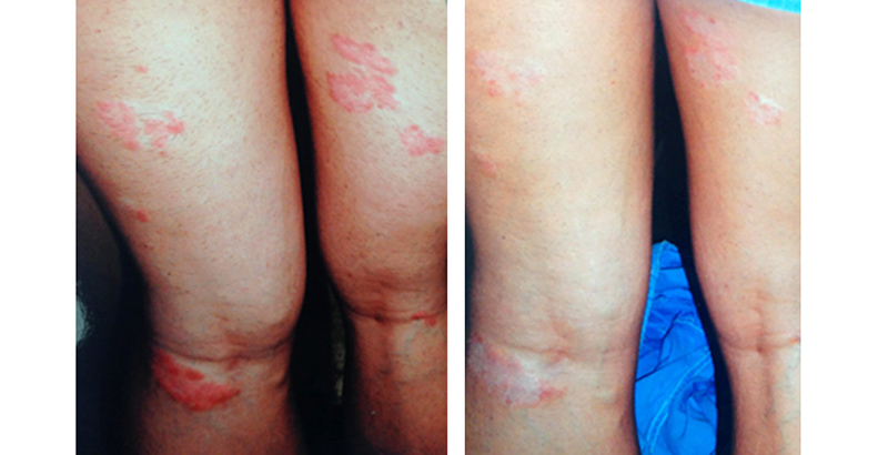 mennyi ideig tart a pikkelysmr kezelse vörös duzzadt foltok a bőrön viszketnek