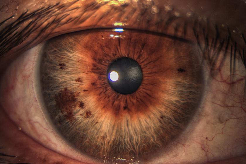pikkelysömör krém psoricap a szem alatt vörös foltok és viszketés