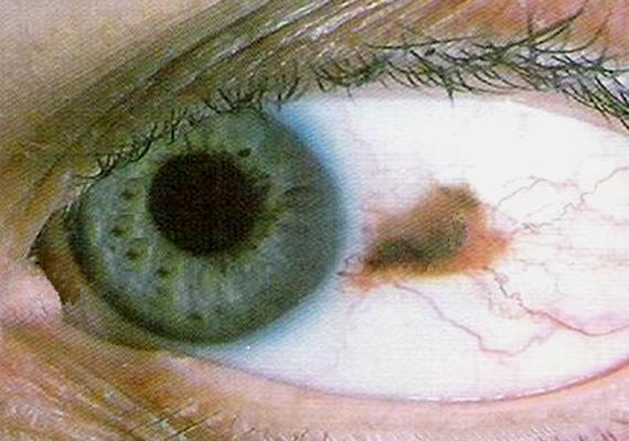 vörös szemfoltok a szeméremrészen a férfiaknál, mint kezelni