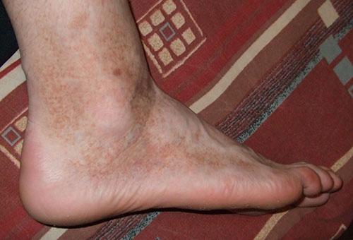 a vörös pelyhes foltok megjelenésének okai a lábakon hogyan kell kezelni a test kiütését vörös foltokkal