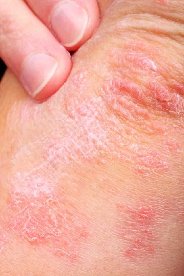 hogyan kell kezelni a guttate pikkelysömörét vörös lapos foltok az arc bőrén