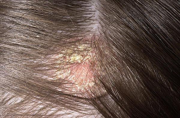 vörös kerek foltok a fejbőrön vörös foltok jelentek meg a testen, hogyan kell kezelni