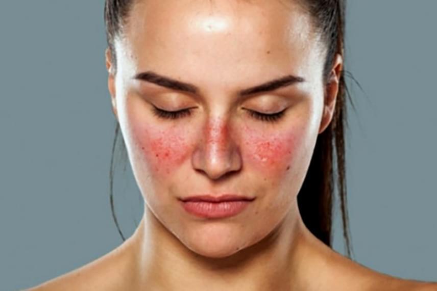 hogyan lehet otthon gyógyítani a pikkelysömör arcát? vörös pikkelyes folt a comb bőrén