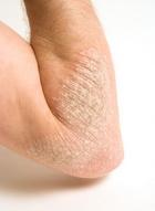 pikkelysömör kezelése biysk újdonságok a pikkelysömör kezelésére
