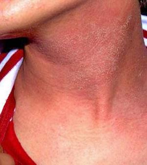 piros folt a nyakon pikkelysömör kezelése arzén