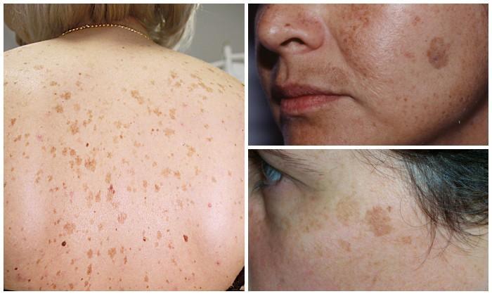olyan betegségek, amelyekben vörös foltok jelennek meg a bőrön a testen lévő foltok vörösek és viszketők, mint kezelni