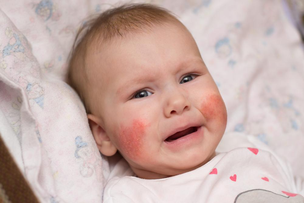 vörös foltok az idegek kezeléséből vörös folt hólyagokkal a bőrön