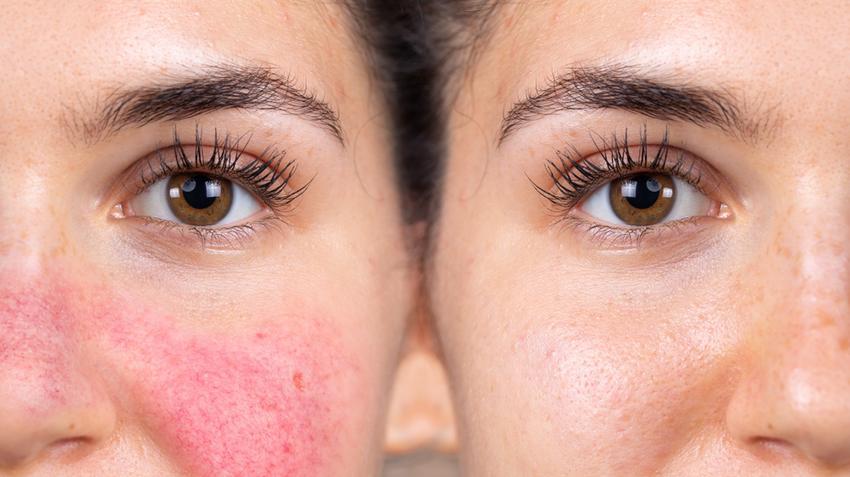 vörös lapos foltok az arc bőrén az egész test viszket vörös foltokat hogyan kell kezelni