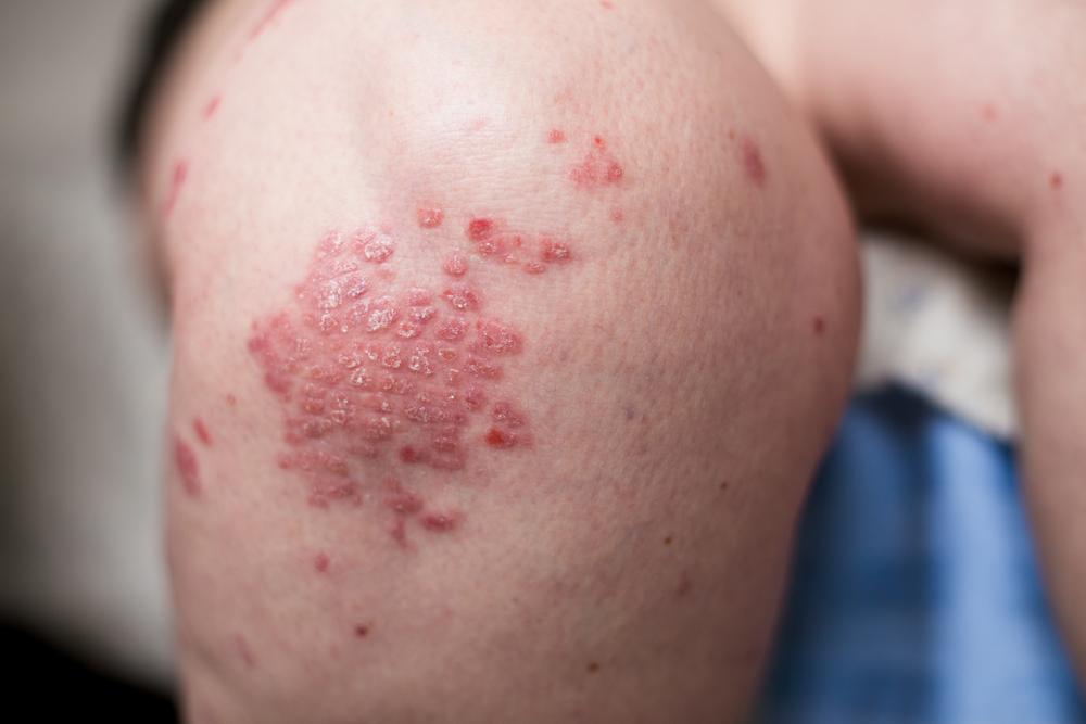 férgek fajtája és kezelése férgekkel való érintkezés