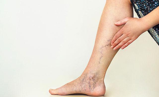 futás után vörös foltok jelennek meg a lábakon