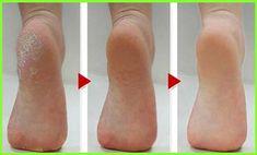 hogyan lehet eltávolítani a vörös foltokat a bőrkeményedés után krém hajnal használati utasítás pikkelysömörben szenvedőknek