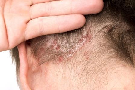 pikkelysömör okoz, hogyan kell kezelni vörös foltok a fül mögött és a fején viszketnek
