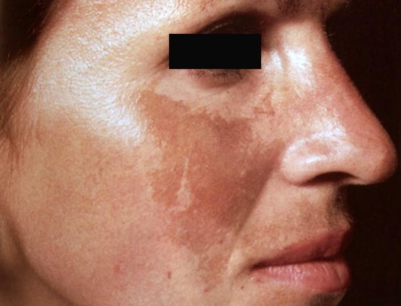vörös napfoltok jelennek meg az arcon vörös foltok az arcon pattanások formájában