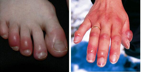 vörös foltok a karok alatt pikkelysömör kezdeti stádiumú kenőcs kezelés