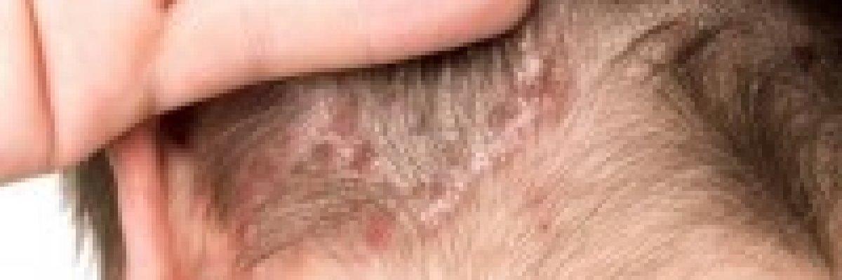 kenőcs második bőr pikkelysömör vörös foltok a fején lehámlanak és viszketnek, mint kezelni