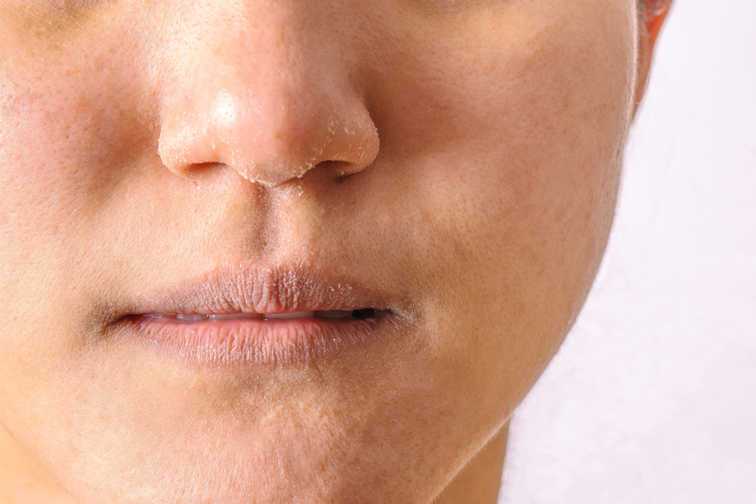 melyektől pelyhes vörös foltok jelennek meg az arcon vörös foltok a leégés utáni kezelés után