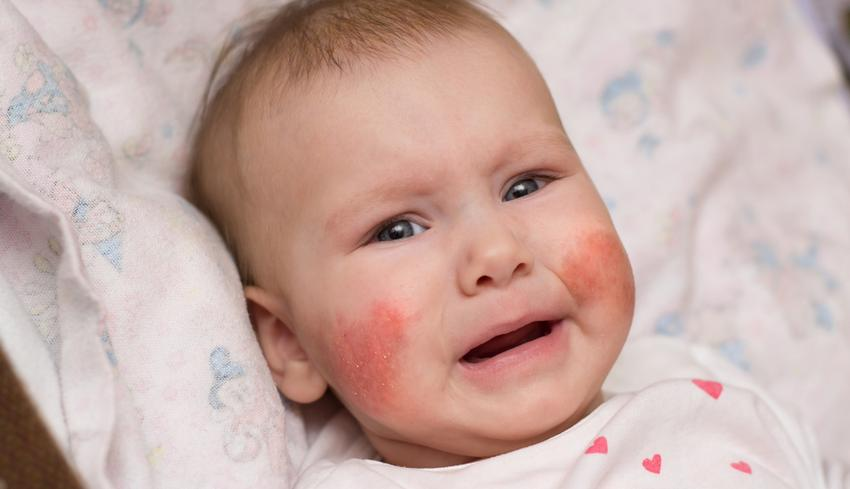 reggel vörös folt jelent meg az arcon)