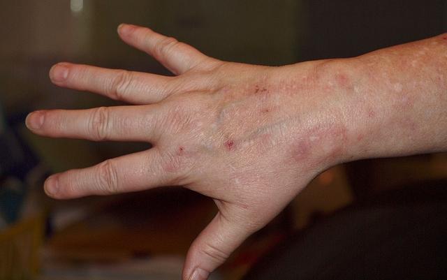 vörös foltok a kezek bőrén)
