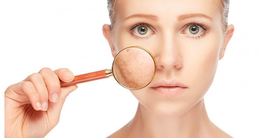 psoriasis gangway kezelse bőrbetegségek ekcéma pikkelysömör kezelése
