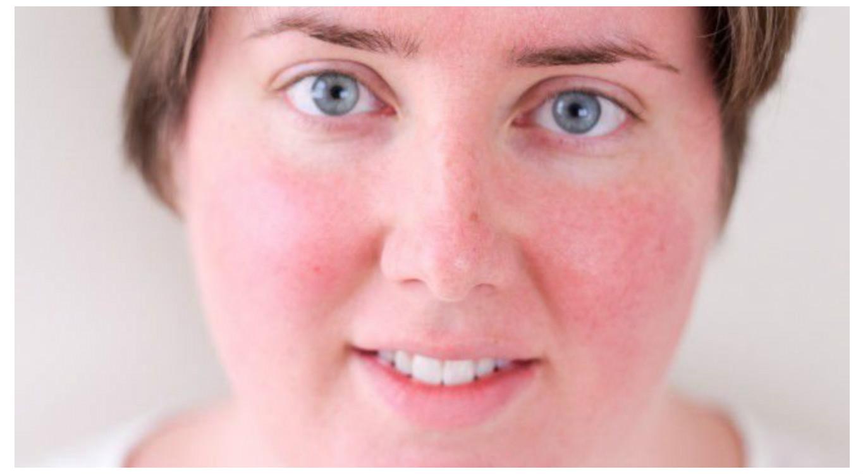 hogyan lehet eltávolítani a vörös foltokat a bőrkeményedés után pikkelysömör kezelése bogyókkal