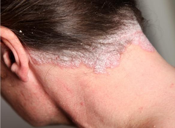 terápiás kezelés a pikkelysömörhöz folt a testen piros peremmel, hogyan kell kezelni
