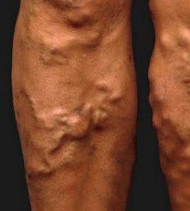vörös foltok a visszér lábain a pikkelysömör kenőcsökkel végzett gyógynövényes kezelés hatékony