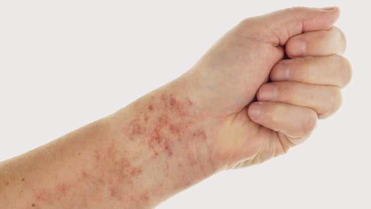 a lábakon vörös foltok zúzódásokként fájnak)
