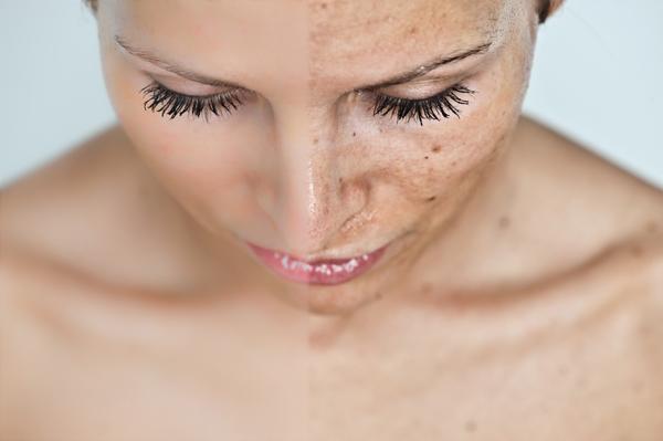 Mi a különbség a pikkelysömör és a bőrrák közt?