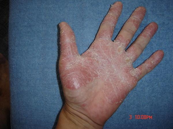 hogyan lehet gyógyítani a pikkelysömör tenyéren és lábán vörös folt és pattanás a lábán