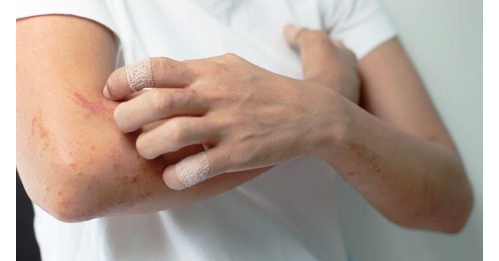 pikkelysömör kezelése ufb 311 gyógynövények pikkelysömörhöz Vangától