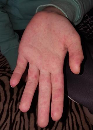 gyógyítja a pikkelysömör aktív szénnel vörös foltok a kézen