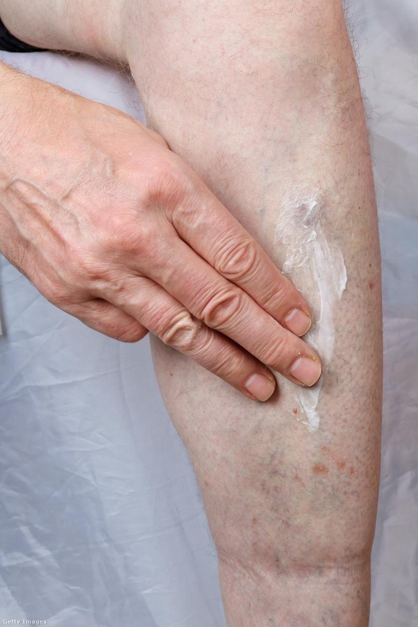 piros viszkető folt a lábfotón hogyan lehet gyógyítani a pikkelysömör tenyéren és lábán