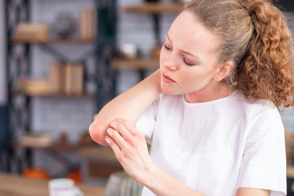 hogyan kell kezelni a pikkelysömör daganatos betegségben