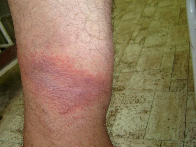a lábakon lévő foltok pirosak hogyan kell kezelni)