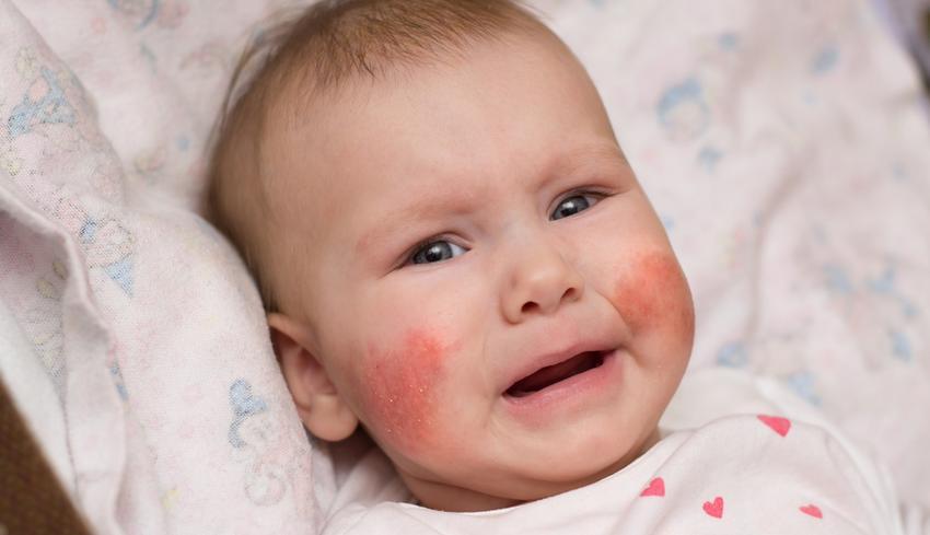 viszkető pikkelyes vörös foltok az arcon piros és lila folt a kezén mi ez