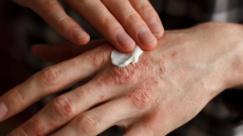 pikkelysömör a kezeken a kezelés kezdeti szakasza vörös folt az ember lábán