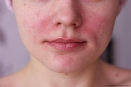 vörös foltok az arcon az alkoholtól vörös foltok vannak a testen viszketés okai