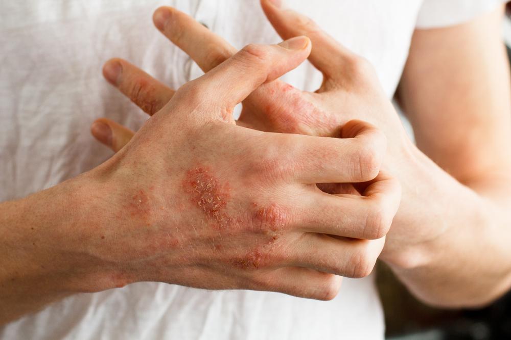 a pikkelysömör kenőcsökkel végzett gyógynövényes kezelés hatékony csipkebogyó kenőcs pikkelysömörhöz