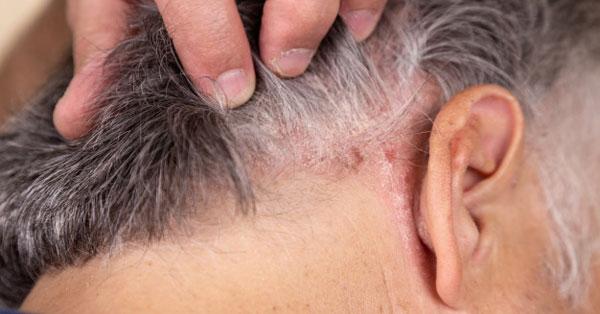 vörös pikkelyes foltok a haj alatti bőrön vörös foltok az arcon seborrheás dermatitis