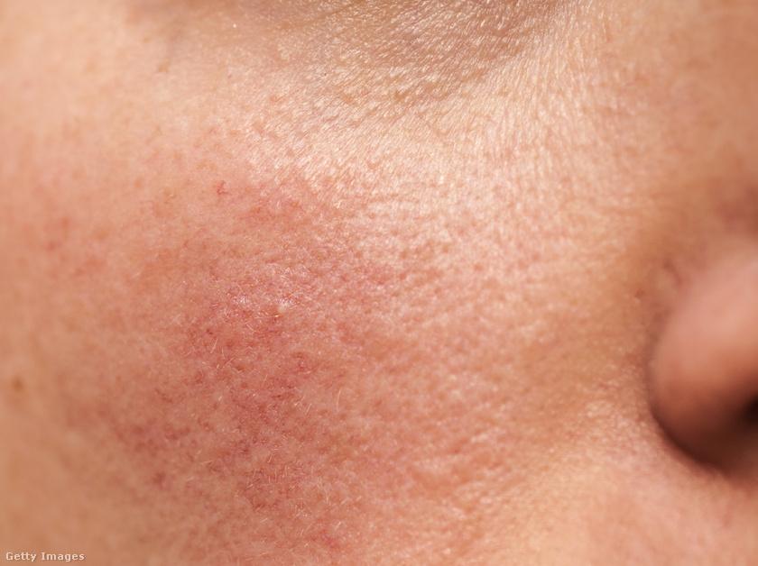 kiütés a has bőrén vörös foltok formájában, viszketéssel a felnőtteknél halványvörös foltok az arcon