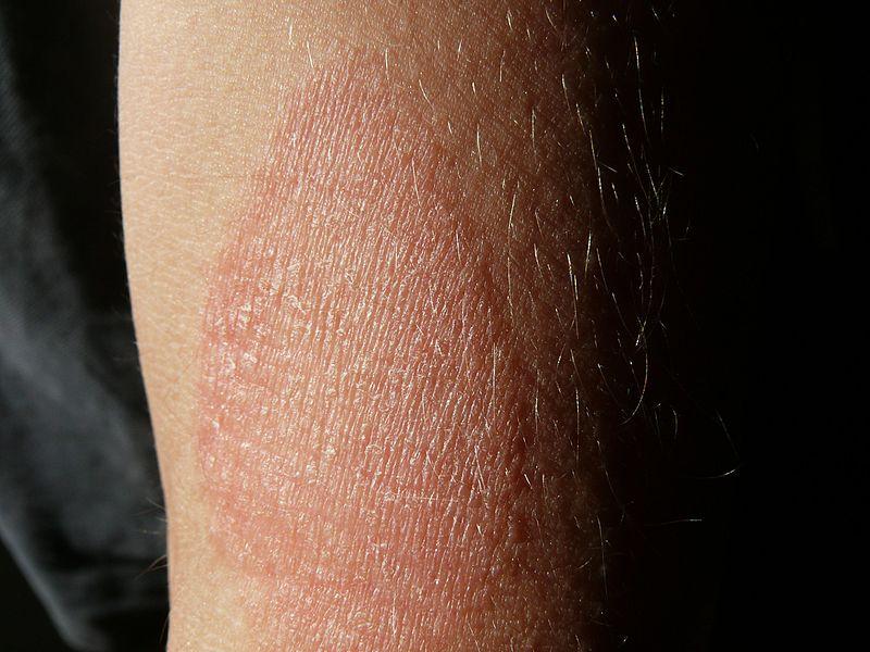 vörös viszkető pikkelyes foltok a testen nehézség a lábakban vörös foltok